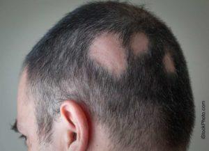 alopecia areata 1024x740 300x217 ALOPECIA, A LUSCIANO UN CONVEGNO PER COMBATTERLA