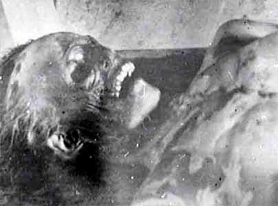 Corpo Passo Dyatlov COSA ACCADDE NEL 1959 A NOVE ESCURSIONISTI IN MARCIA VERSO IL MONTE DEI MORTI?
