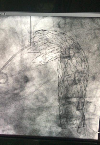 Endoprotesi in arco aortico e aorta discendente previo by pass carotido carotideo AORN CASERTA, EFFETTUATE DUE PROCEDURE IBRIDE PER IL TRATTAMENTO DI GRAVI PATOLOGIE DELL'ARCO AORTICO