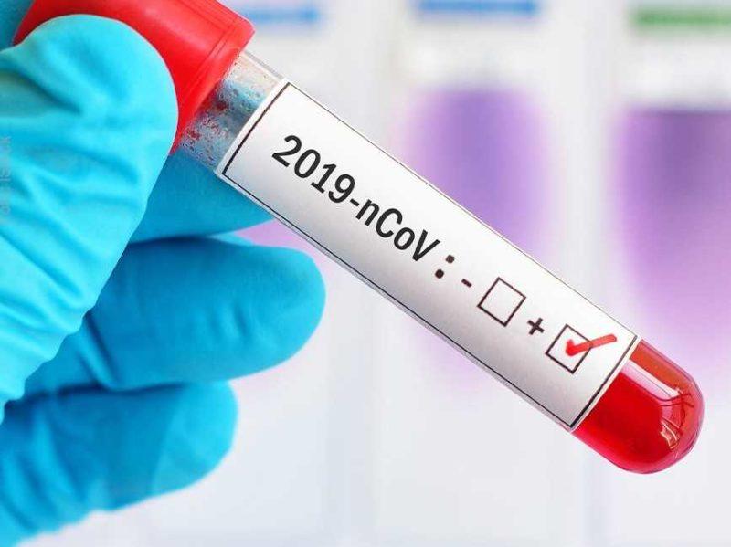 coronavirus 1 1 scaled COVID 19, ASL CONFERMA POSITIVITÀ DI STUDENTESSA CASERTANA: IN QUARANTENA GENITORI E AMICI